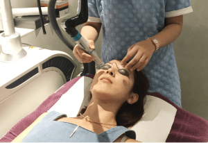 my-bliss-clinic-laser-treatment