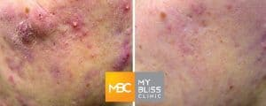 my-bliss-clinic-clear-matte-laser-treatment