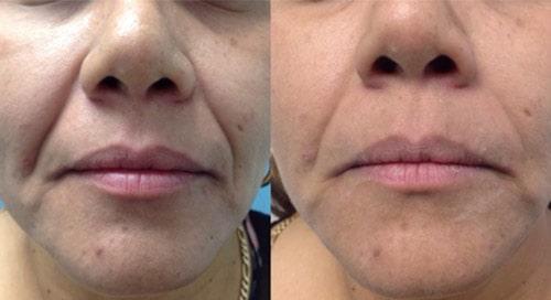 fotona-4d-laser-skin-tightening-treatment