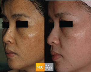 my-bliss-clinic-laser-toning-treatment
