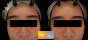 pigment laser before after 2