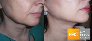 my-bliss-clinic-twinlight-rejuvenation-treatment