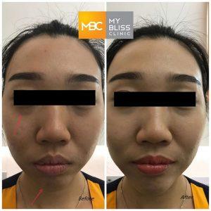 under eye chin filler before  after