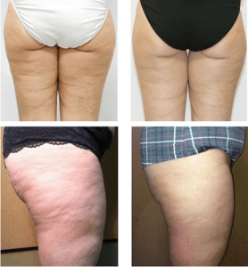 my-bliss-clinic-cellulite-treatment