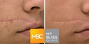 dynamis resurfacing laser before after 3