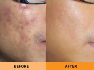 my-bliss-clinic-pigmentation-laser-treatment