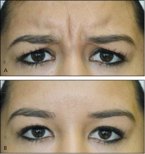 botulinum-toxin-injection-for-facial-wrinkles