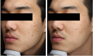 My Bliss Clinic Gold PTT Before After 1