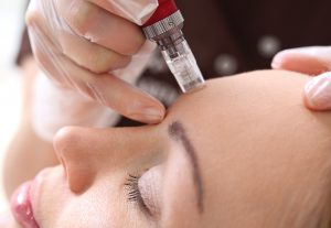 My Bliss Clinic Mesotherapy Blog Oct Featured Image